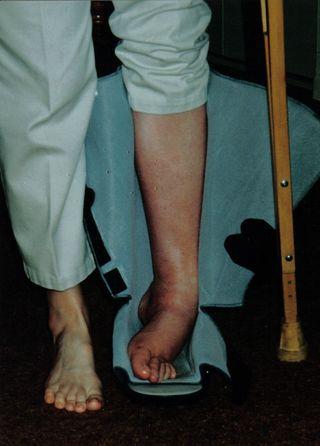 Left RSD leg and foot
